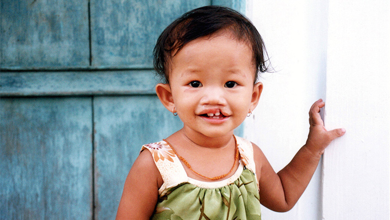 Giving Tuesday: Donations will be matched for Operation Smile