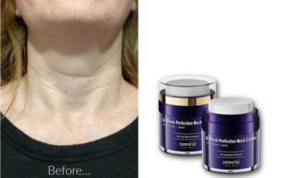 Does DefenAge 6-week Perfection Neck Tightening Cream really perfect your neck? Here are my before and after photos.