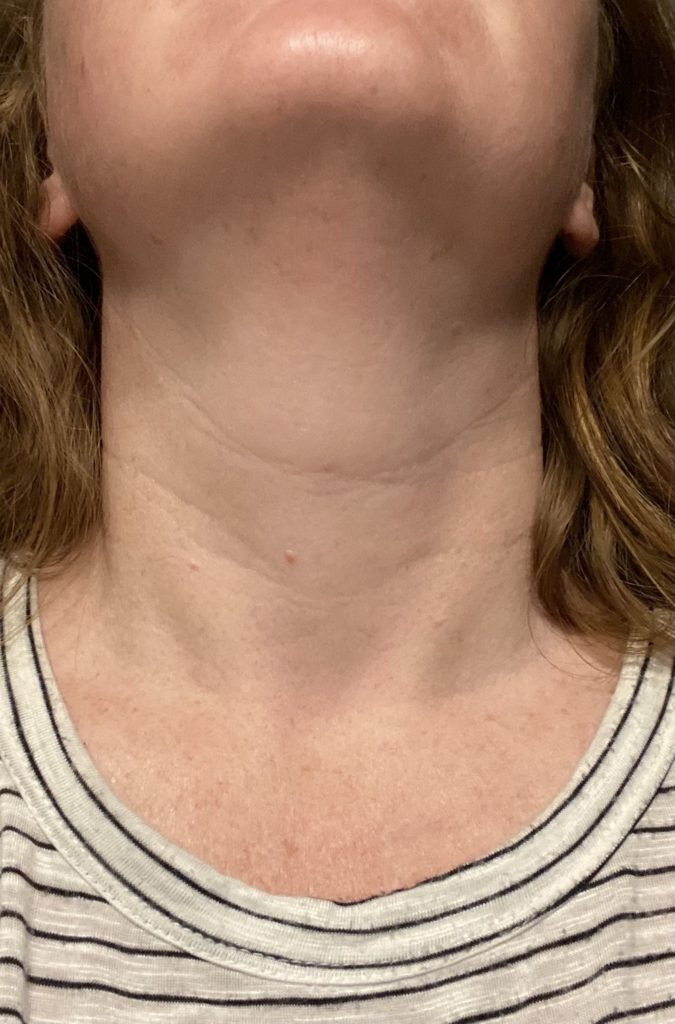 My neck, 8 weeks after the DefenAge Perfection Neck Cream with occasional use.