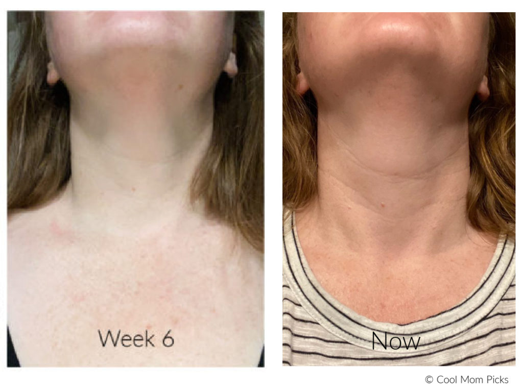 DefensAge Neck Cream results: 8 weeks after stopping the routine   More details: cool mom picks